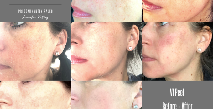 Chemical Peels and Safer Skincare